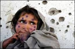 15 Gazze